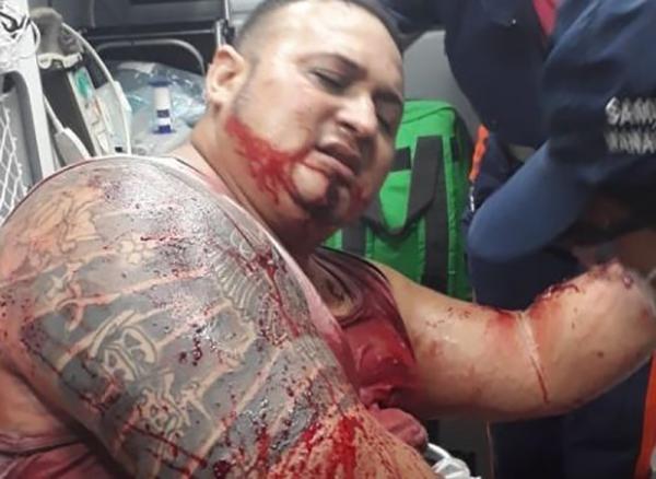 Traficante que foi fuzilado no Parque Dez morre no 28 de Agosto
