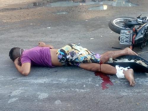 Motociclista fica gravemente ferido ao colidir seu veículo com caçamba; veja vídeo