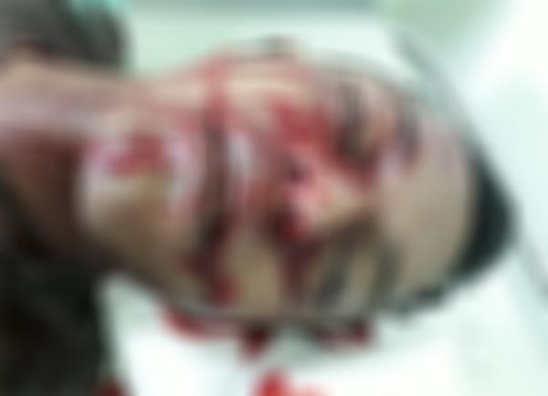 Adolescente é executado por pistoleiros com tiros na cabeça, no Coroado