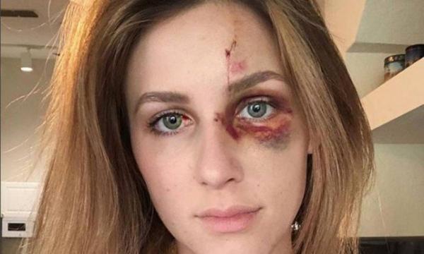 Brasileiro acusado de agredir namorada nos EUA é solto após pagar fiança