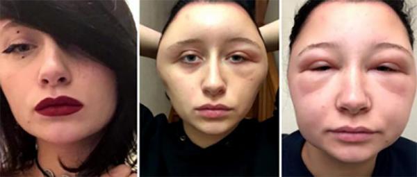 Jovem fica com o rosto deformado após reação alérgica à tinta de cabelo