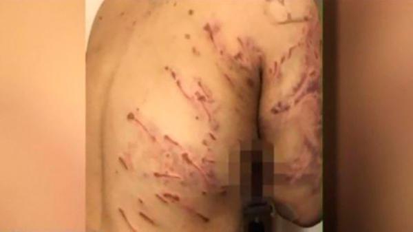 Mulher tem mais de 200 ferimentos após ser atacada por 10 cães