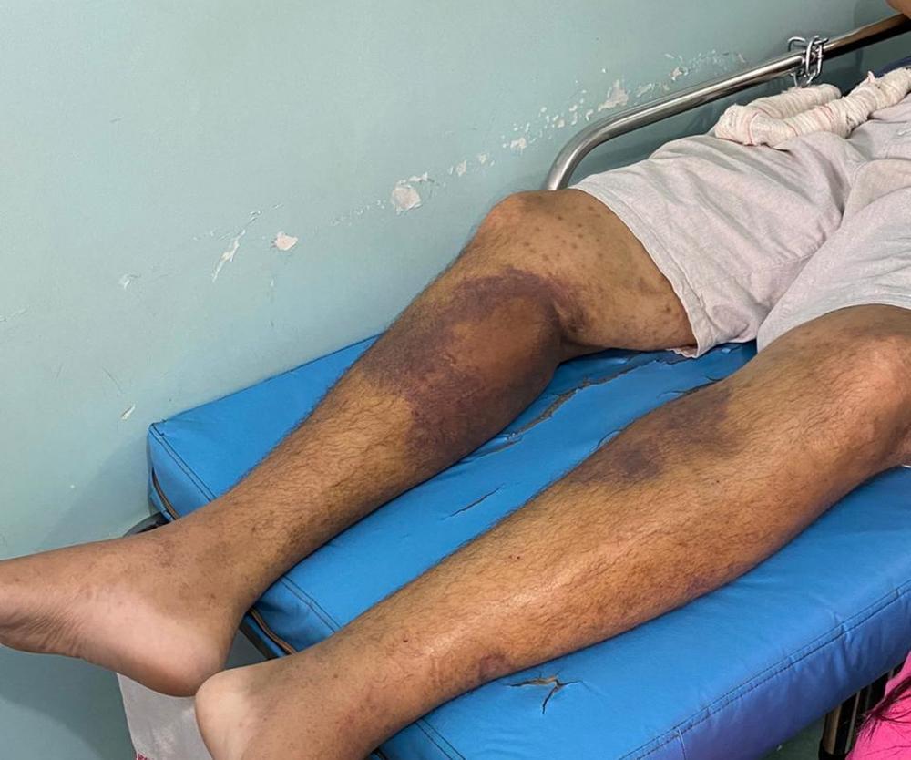 Segundo Comissão dos Direitos Humanos da OAB Roraima, alguns presos não conseguem andar — Foto: Arquivo pessoal