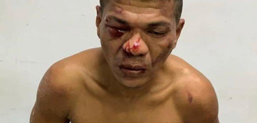 'Galo Cego' é preso após assalto no Alvorada