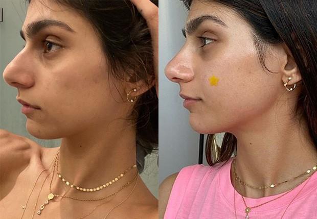 "Mia Khalifa mostra resultado de cirurgia plástica no nariz: ""Mais suave"""