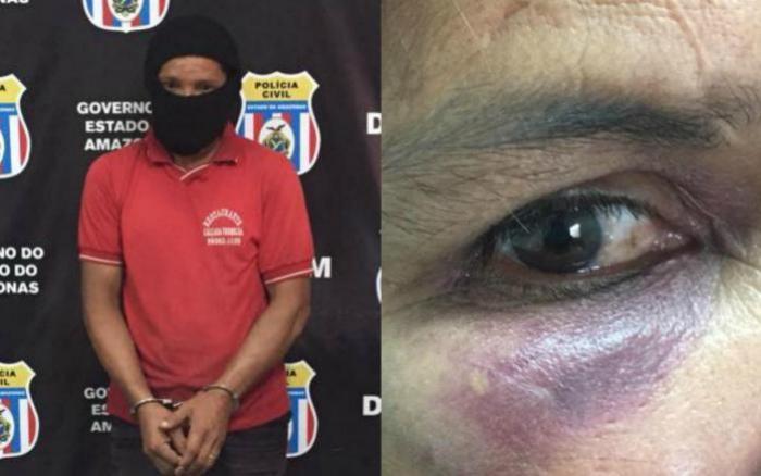 Dona de casa registra sétimo B.O contra marido após ficar com rosto desfigurado