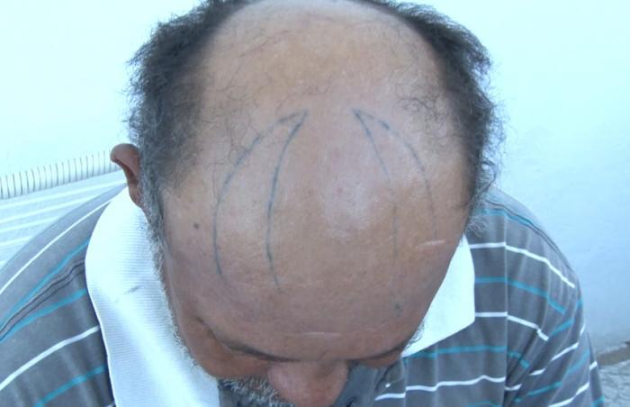 Maldade: Mulher tatua chifre na cabeça do marido com a ajuda do amante