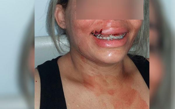 Em Manaus, ônibus que transportava agentes penitenciários é atingido por pedra e mulher é ferida