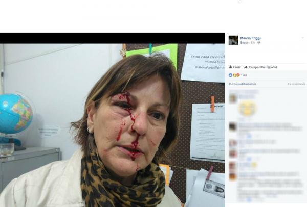 Professora é agredida por aluno de 15 anos após expulsá-lo da sala