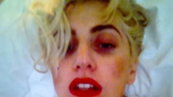 Lady Gaga cancela participação no Rock in Rio e fãs entram em desespero
