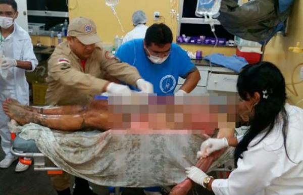 Mulher é transferida para UTI em Manaus após ter 90% do corpo queimado pelo marido