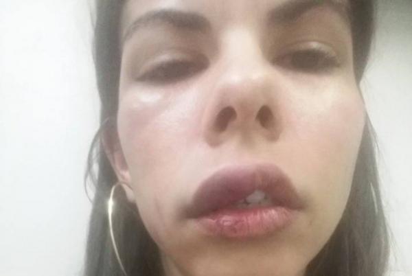 Mulher é agredida por namorado e posta fotos