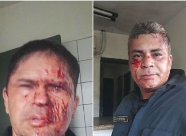 FIlho de major da PM comanda espancamento de três guardas municipais no Parque dos Bilhares