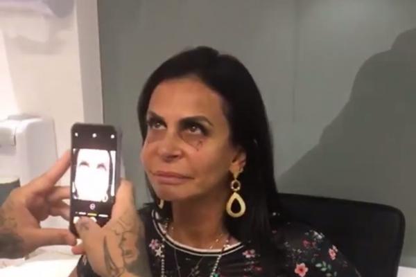 """Gretchen faz tatuagem para disfarçar olheiras: """"Vai ficar escândalo!"""""""