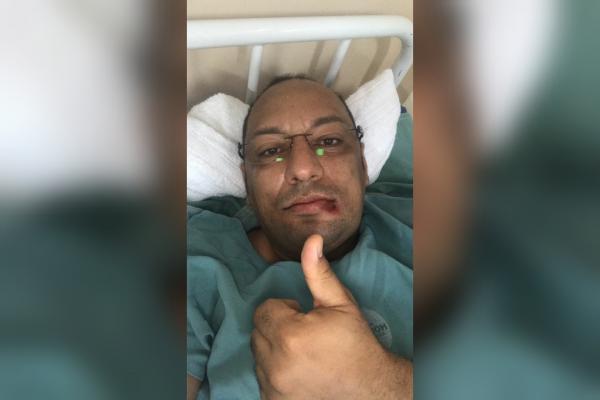 Pajé do Garantido passa bem após cirurgia na mandíbula