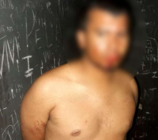 Suspeito de assalto no Centro de Manaus é agredido por populares, diz PM