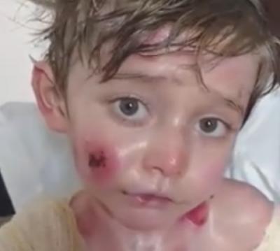 Criança com doença rara emociona internautas